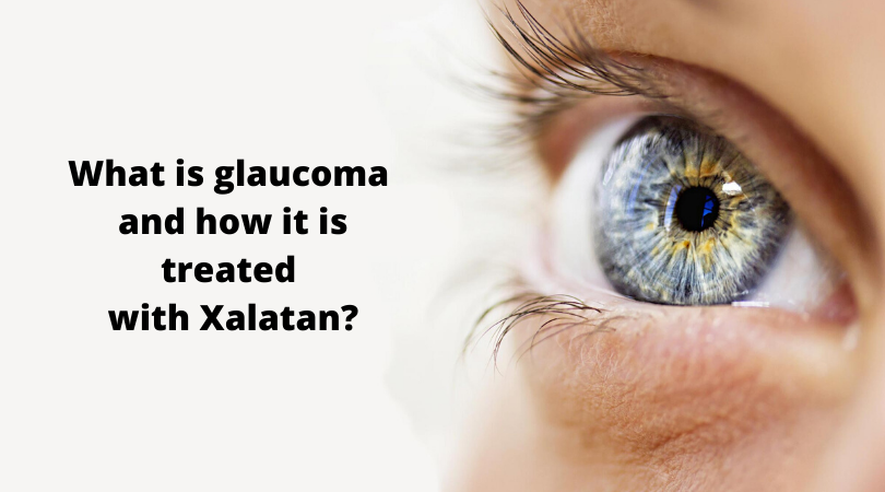 What is glaucoma and how it is treated with Xalatan_